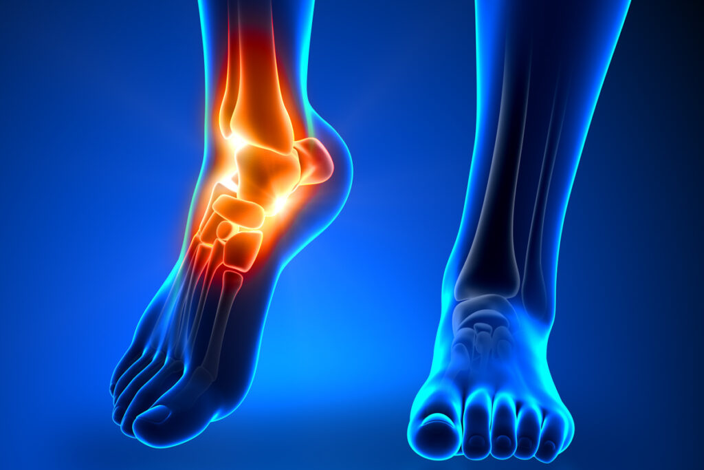 foot and ankle pain mt pleasant chiropractic and wellness- mychiroiq dr jesse ross